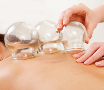 Detail of an acupuncture therapist removing a glass globe in a f