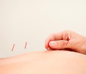 Acupunctuur behandeling Cynthia Franken